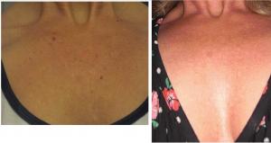 Dekollete vor und nach needling und Freezer 1 Behandlung FEB.Cosmetic GmbH